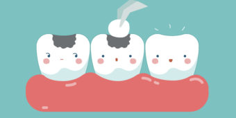 What to Know About Tooth Fillings